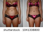 Small photo of Authentic real amateurish before and after weight loss photo of female body.