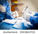 surgical team performing... | Shutterstock . vector #1041861910