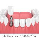 3d render of jaw with teeth and ... | Shutterstock . vector #1043643106