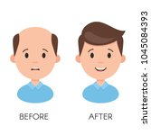 male hair loss. man with... | Shutterstock .eps vector #1045084393