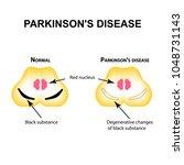 parkinson's disease.... | Shutterstock .eps vector #1048731143