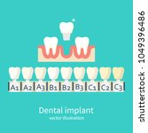 shades of implants. denture and ... | Shutterstock .eps vector #1049396486