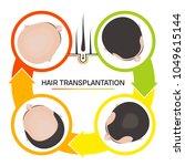hair transplantation surgery 4...