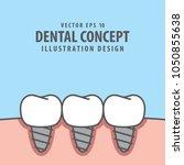 square banner implant teeth... | Shutterstock .eps vector #1050855638