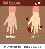 hands care  before after effect ... | Shutterstock .eps vector #1051846736