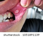 painful aphtha ulcer of  man's... | Shutterstock . vector #1051891139