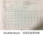 Small photo of Tape ECG with acute period of macrofocal anterior myocardial infarction, st elevation myocardial infarction.