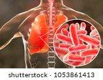 legionella pneumophila bacteria ... | Shutterstock . vector #1053861413