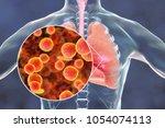 mycoplasma pneumoniae bacteria... | Shutterstock . vector #1054074113