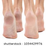 feet with dry skin before and... | Shutterstock . vector #1054429976