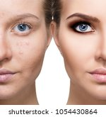young woman before and after... | Shutterstock . vector #1054430864