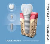 human teeth and dental implant... | Shutterstock .eps vector #1054585613