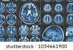 mri brain scan background ... | Shutterstock . vector #1054661900