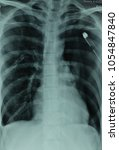 Small photo of Cheat X-ray showing Left Lung Pneumothorax and Rt Lubg Surgical Emphysema wuth bilateral Cheat Tube in situ.