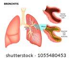 bronchitis. normal bronchial...   Shutterstock .eps vector #1055480453