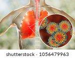 measles viruses in human... | Shutterstock . vector #1056479963