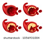 diagram showing fat in blood... | Shutterstock .eps vector #1056931004