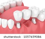 3d render of jaw with dental... | Shutterstock . vector #1057659086