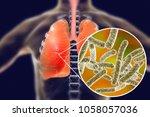 legionella pneumophila bacteria ... | Shutterstock . vector #1058057036
