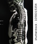 Small photo of Close up MRI whole spine a human and spine metastasis ( cancer spread to thoracic spine)