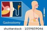 peg gastric nasojejunal... | Shutterstock .eps vector #1059859046