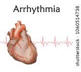 human heart. arrhythmia....   Shutterstock .eps vector #1060514738