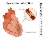 myocardial infarction. heart... | Shutterstock .eps vector #1061838260