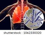 legionella pneumophila bacteria ... | Shutterstock . vector #1062330320