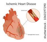 ischemic heart disease. blocked ... | Shutterstock .eps vector #1063197290