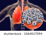pneumococcal pneumonia  medical ... | Shutterstock . vector #1064017094