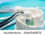 implan model tooth support fix... | Shutterstock . vector #1064540870