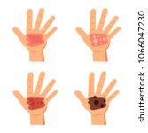 degree burns of skin.... | Shutterstock .eps vector #1066047230