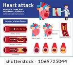 heart attack infographic.... | Shutterstock .eps vector #1069725044