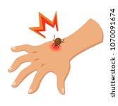 encephalitis tick bites the... | Shutterstock .eps vector #1070091674