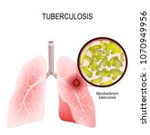 tuberculosis is an infection... | Shutterstock . vector #1070949956