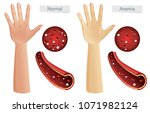 human anatomy vector of anemia... | Shutterstock .eps vector #1071982124
