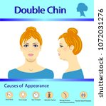 causes of double chin  vector... | Shutterstock .eps vector #1072031276