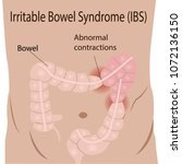 irritable bowel syndrome  ibs ... | Shutterstock .eps vector #1072136150
