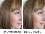 face woman wrinkles before and... | Shutterstock . vector #1073244260
