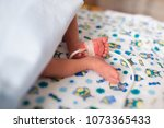 premature baby legs with... | Shutterstock . vector #1073365433