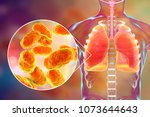 pneumonia caused by haemophilus ... | Shutterstock . vector #1073644643