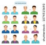 hair transplant vector hairy... | Shutterstock .eps vector #1074515693