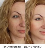 woman face wrinkles before and... | Shutterstock . vector #1074970460