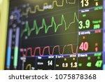 ekg monitor in intra aortic... | Shutterstock . vector #1075878368