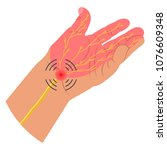 carpal tunnel syndrome vector... | Shutterstock .eps vector #1076609348