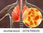 pneumonia caused by haemophilus ... | Shutterstock . vector #1076700020