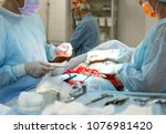 Small photo of Plastic surgery. Liposuction. Abdominoplasty. Surgical instrument
