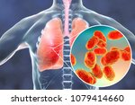 pneumonia caused by haemophilus ... | Shutterstock . vector #1079414660
