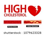 cholesterol in artery  health... | Shutterstock .eps vector #1079623328