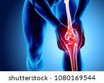knee painful   skeleton x ray ... | Shutterstock . vector #1080169544